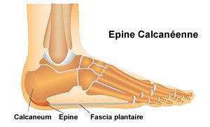 epine calcaneenne